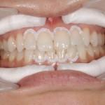 WN4 歯頚部保護